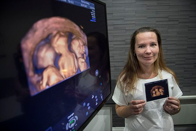 34-летняя мама четверых детей решилась на «последнего» ребенка, а забеременела тройняшками