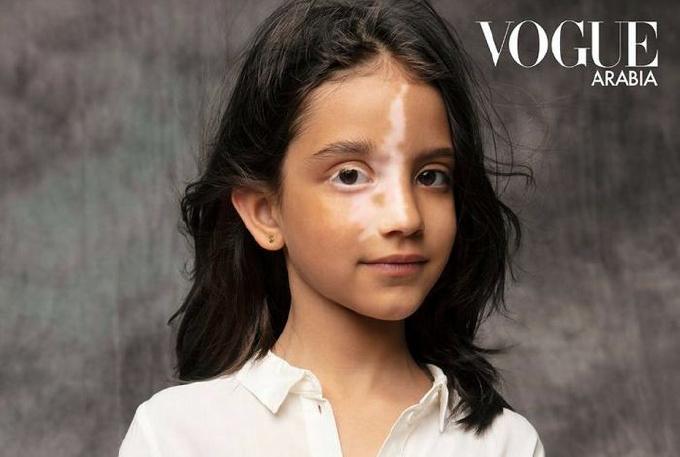 Пострадавшая от взрыва в Бейруте девочка появилась на обложке VOGUE